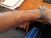 Click image for larger version.  Name:Arm.jpg Views:15 Size:978.3 KB ID:196408